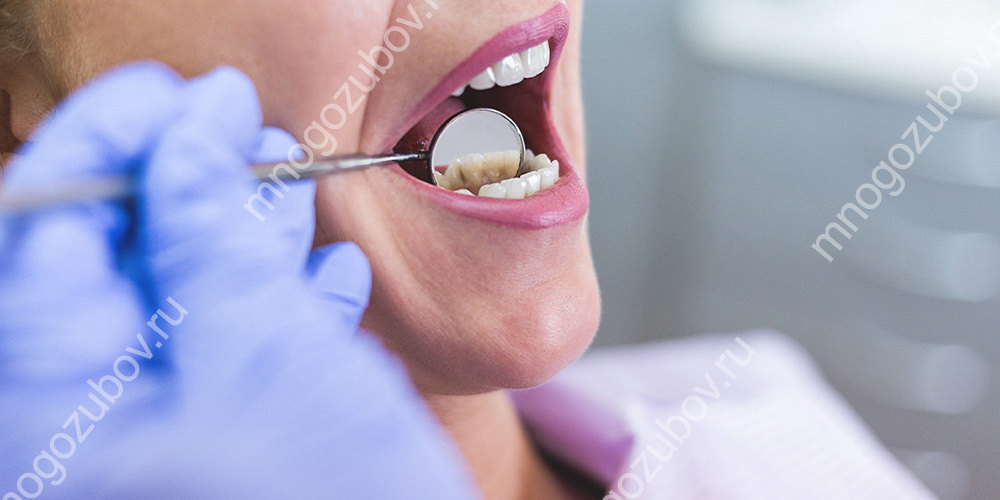 Болит при нажатии зуб без нерва thumbnail
