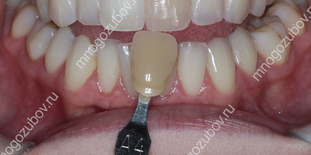Зуб меняет цвет