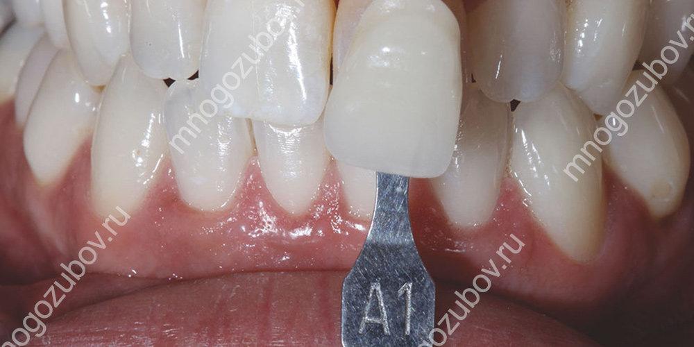 Как происходит подбор цвета зуба
