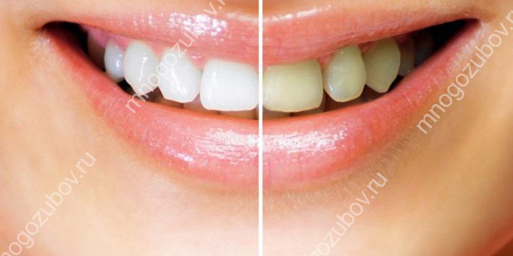 Как сохранить результат отбеливания зубов