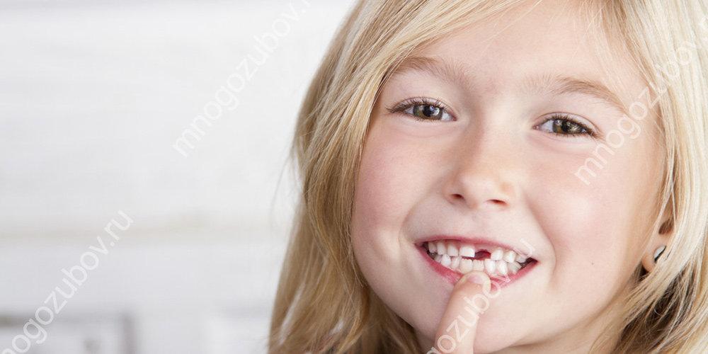 Действия при выбитом зубе у ребенка