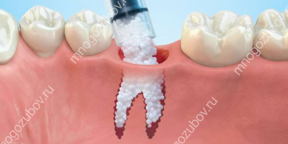 Костная пластика перед имплантацией