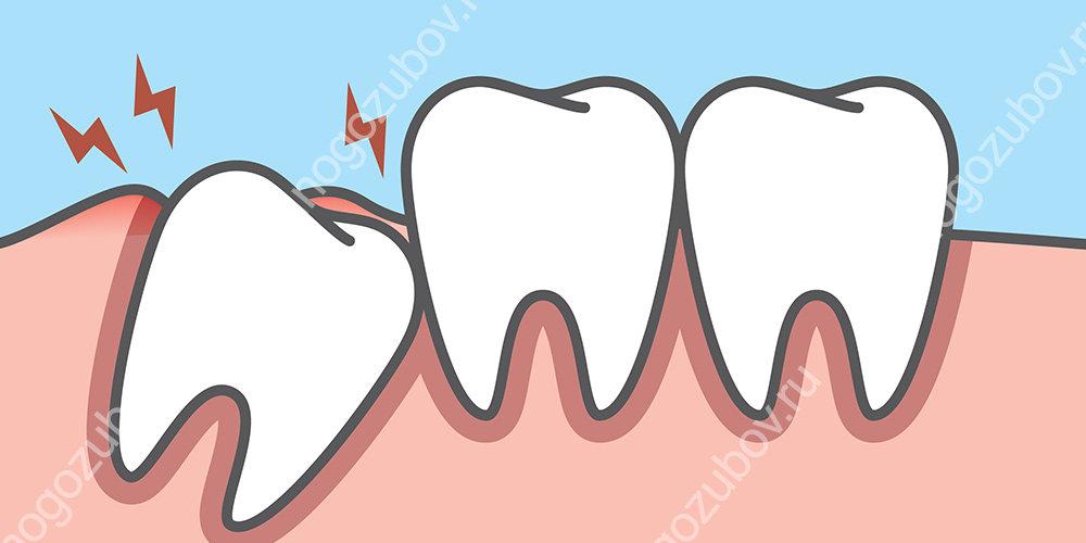 Боль при прорезывании зуба мудрости