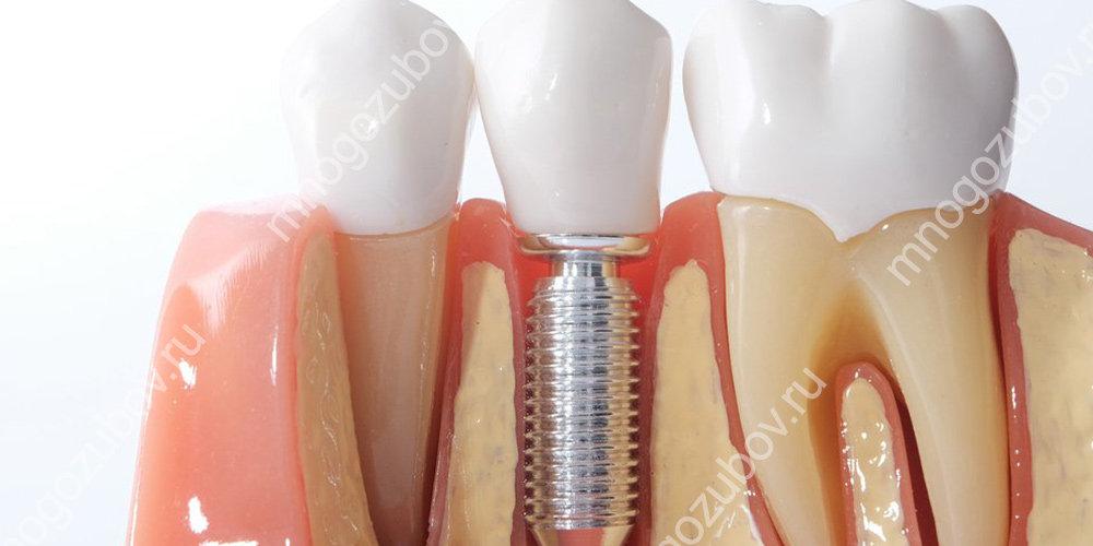 Восстановление зуба при помощи имплантации