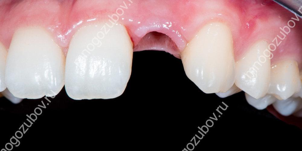 Когда показана имплантация зубов