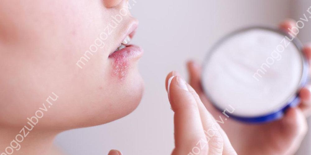 Герпес ниже губы лечить thumbnail