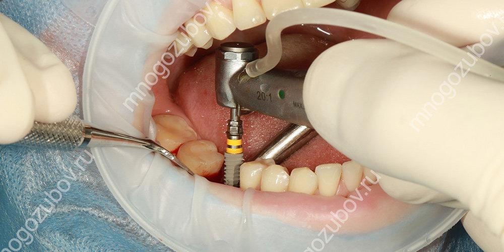 Фото: проведение вживления импланта в челюсть