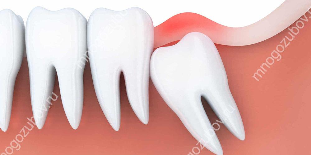 Зуб мудрости не прорезался: причины и показания к удалению