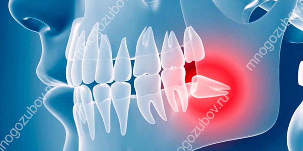 Не правильно растут зубы