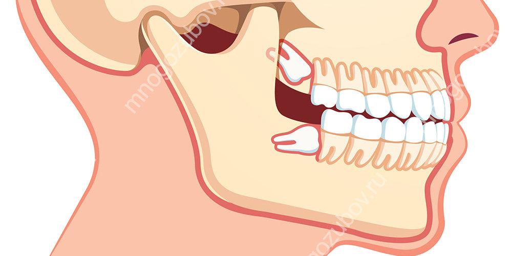В каких случаях стоит обратиться к стоматологу