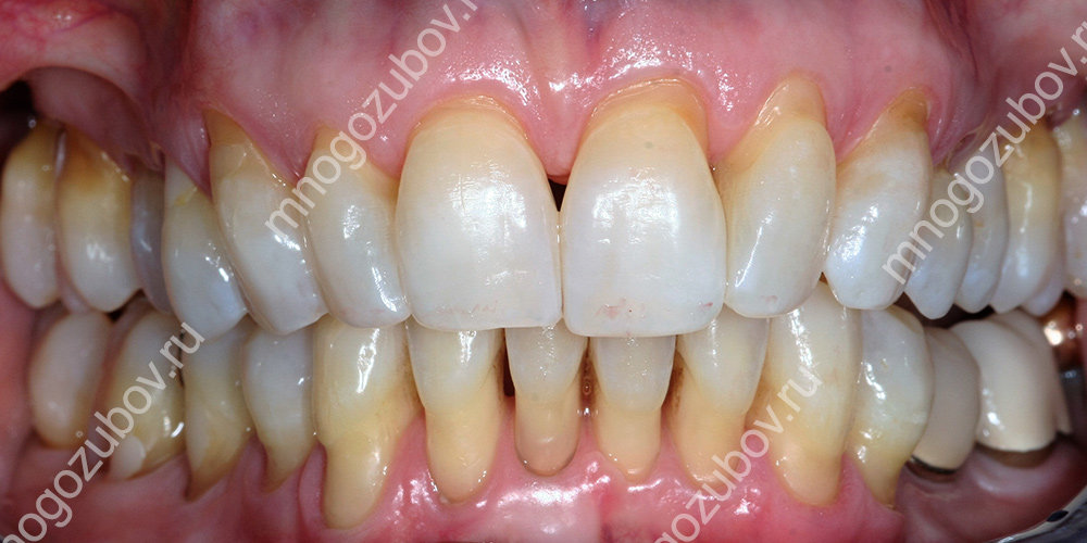 Лечение уже леченого зуба thumbnail