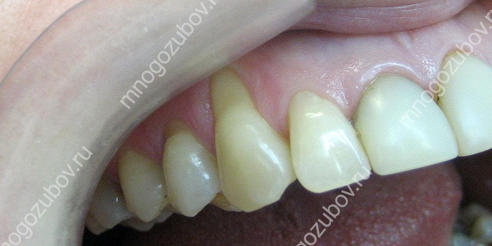 Оголение шейки зуба - фото