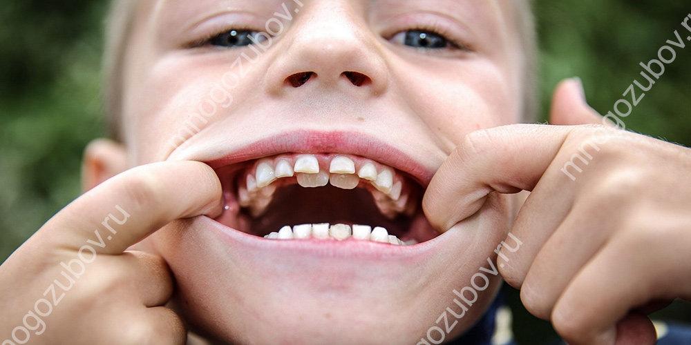 Не выпали молочные зубы у ребенка