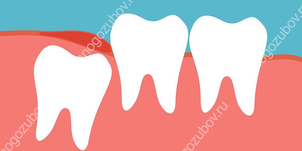 Процесс прорезывания зубов мудрости