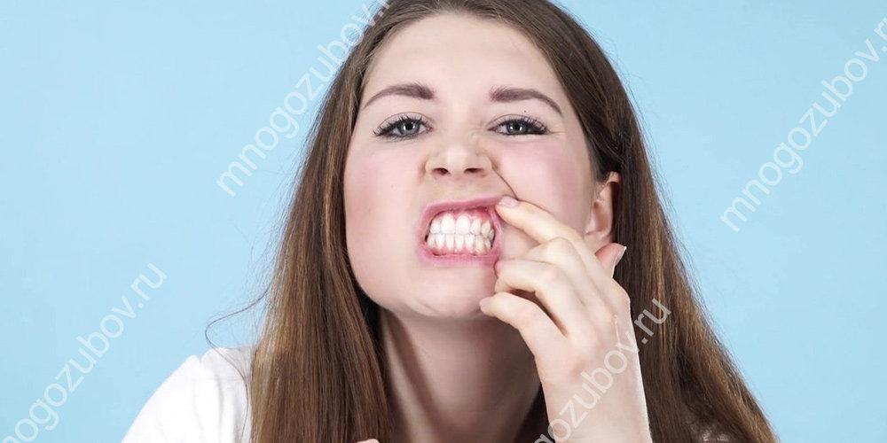Укрепление шатающегося зуба в десне