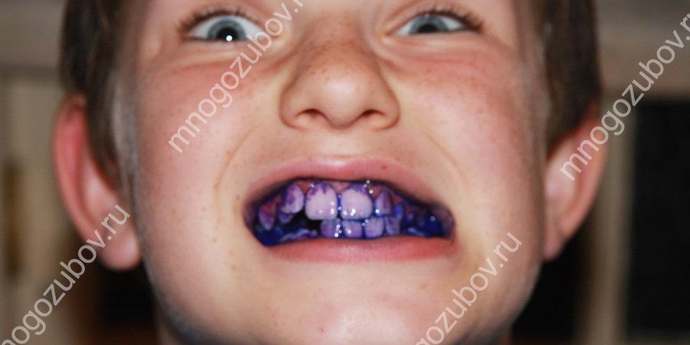 Подсвеченный налет на зубах