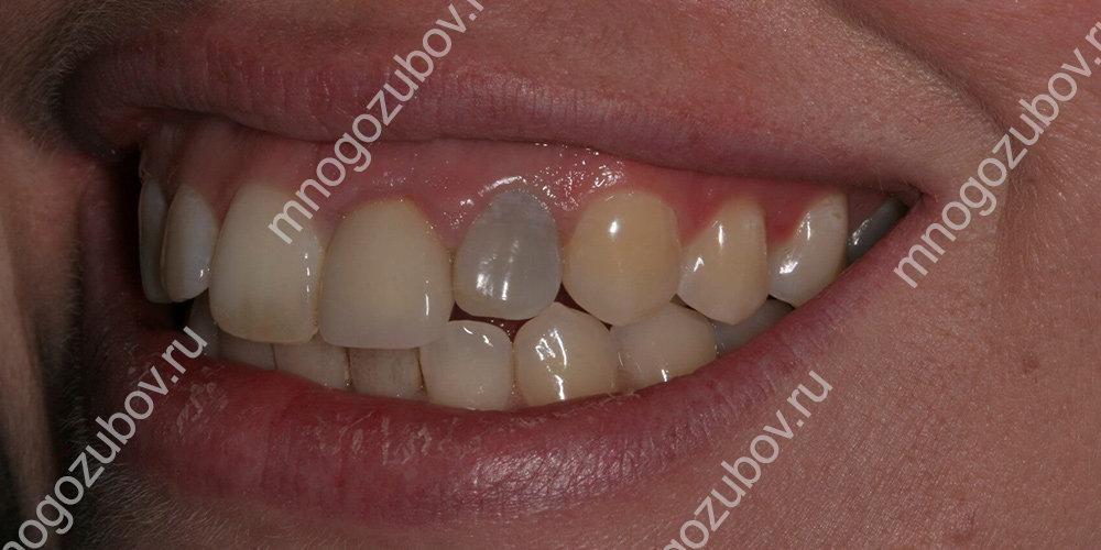 После лечения потемнел зуб
