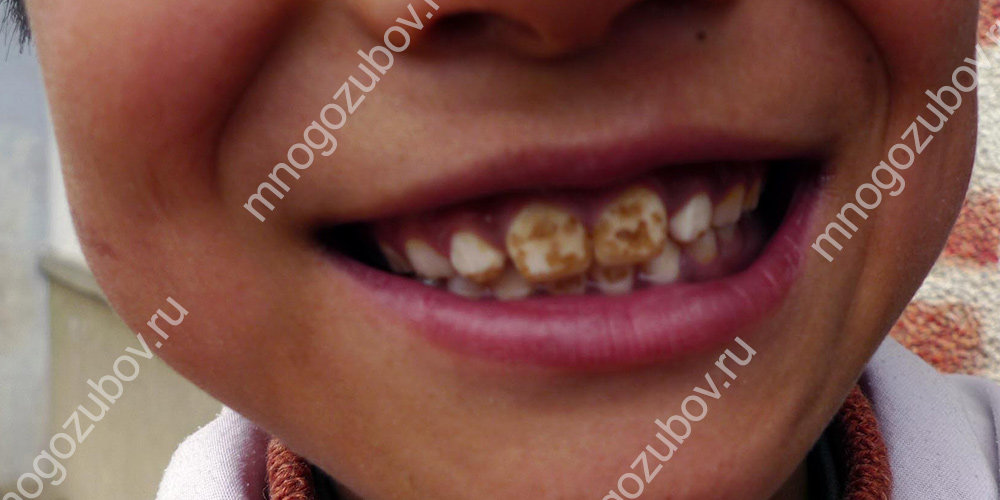 Флюороз на детских зубах