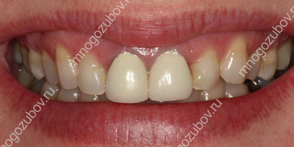 Что делать если темнеют зубные коронки