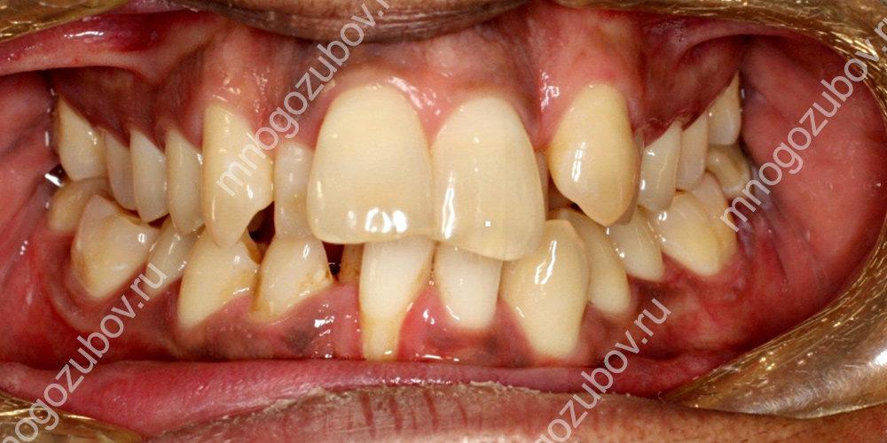 Сильная деформация зубов во рту