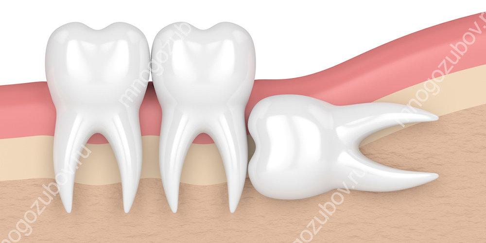 Горизонтальное прорезывание зуба мудрости