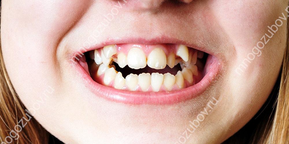 Кривые зубы у ребенка