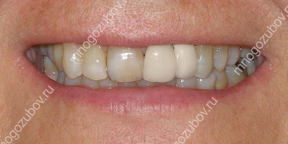 Какие гарантии предоставляются при протезировании зубов{q}