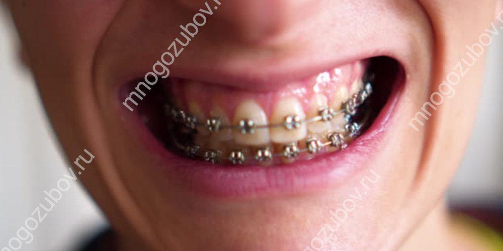 Потемнели зубы с брекетами