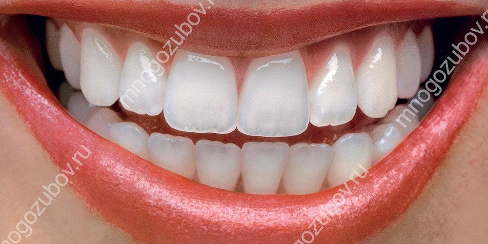 Почему зубы становятся прозрачными