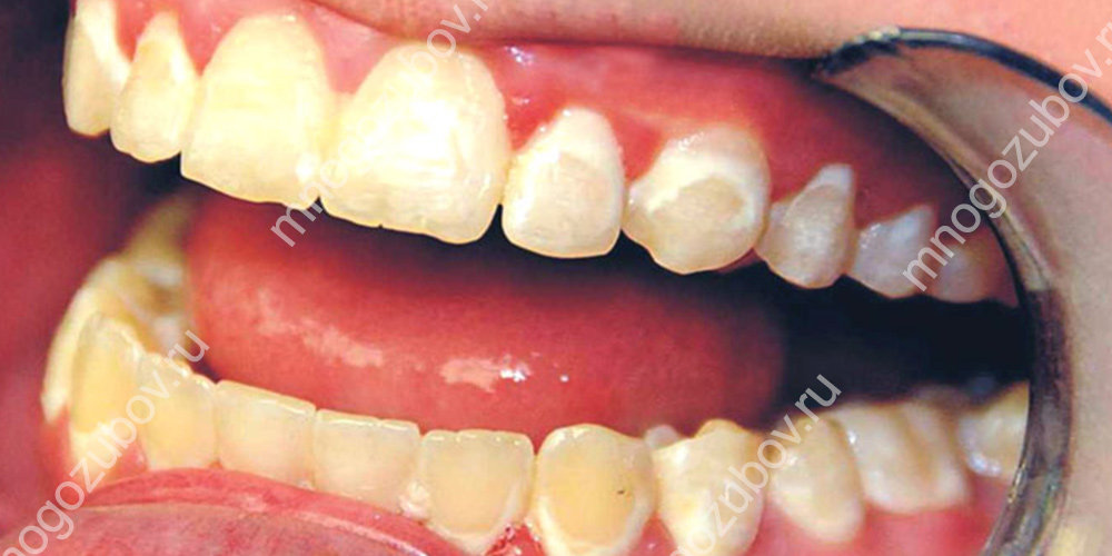 Фото с пятнами на зубах после снятия брекетов