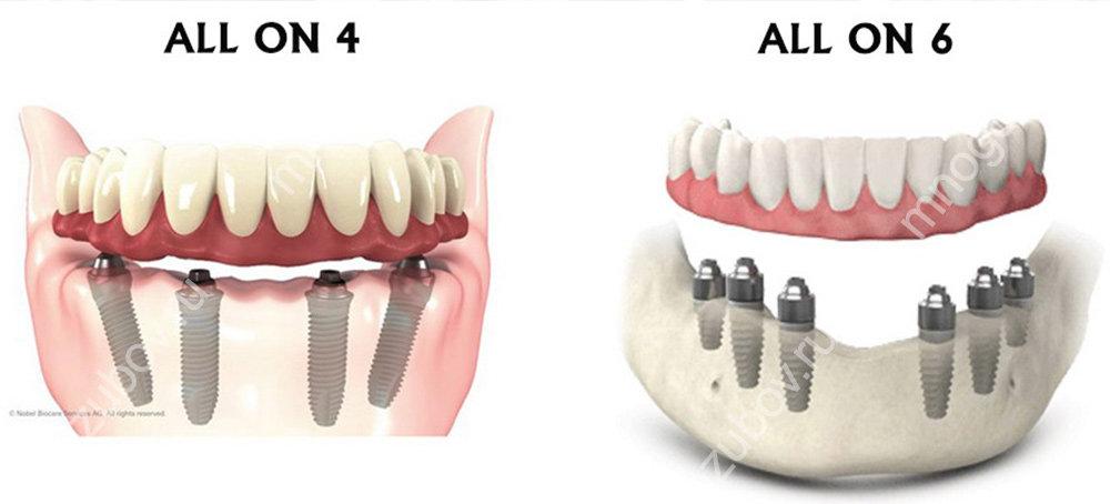 Немедленная имплантация зубов