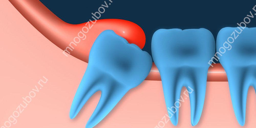 Наростание десны на зуб мудрости - перикоронит