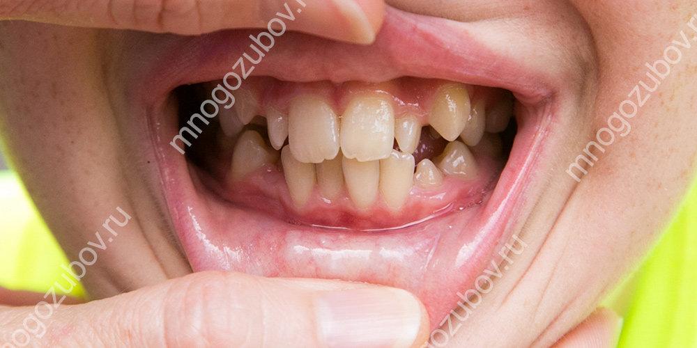 Фото: скученность зубов у ребенка