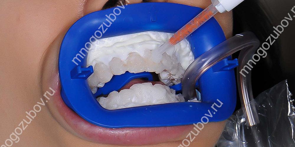 Нанесение геля перед отбеливанием зубов