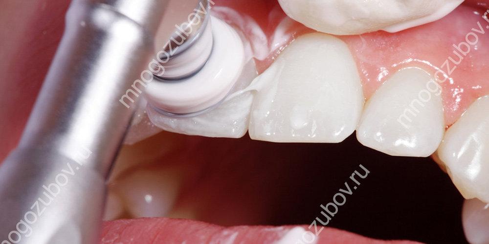 Проведение отбеливания зубов после исправления прикуса