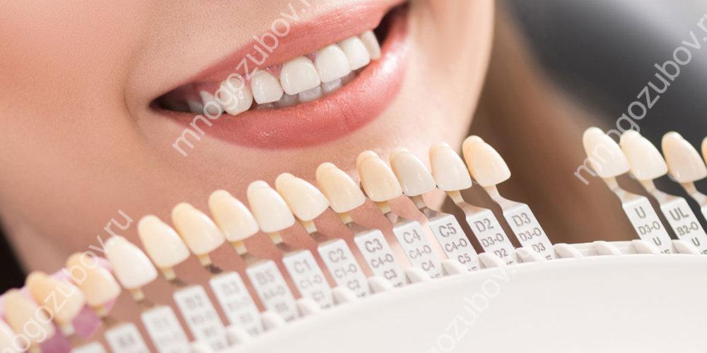 Установка виниров для осветления зубов
