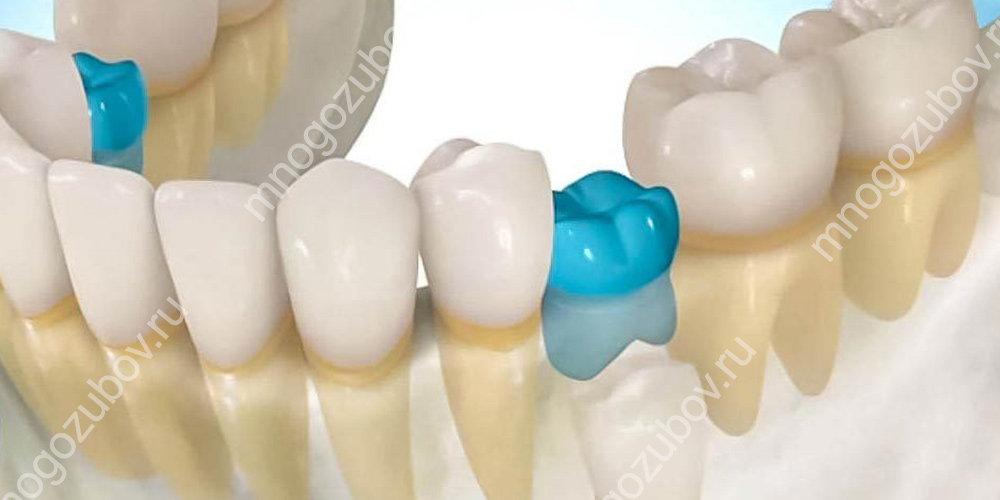 Что такое анкилоз зубов