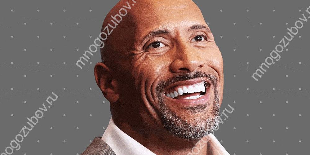 Отбеливание зубов у знаменитостей