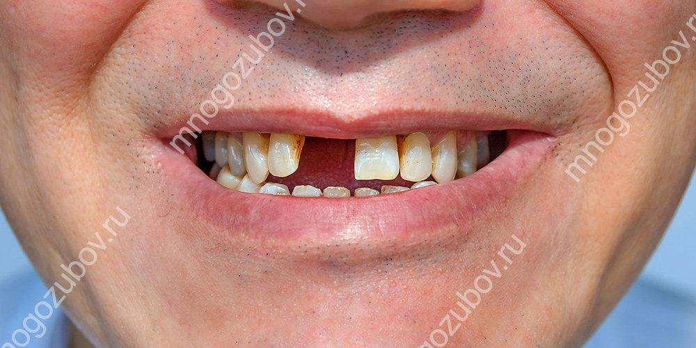 Реплантация после выбитого зуба