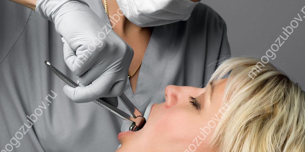 Особенности удаления зубов под общим наркозом