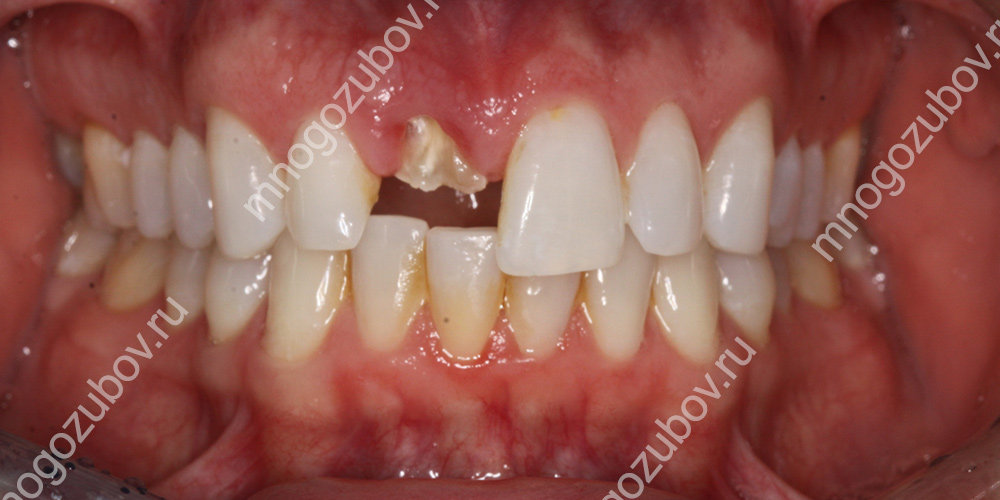 случай когда показана экструзия зуба