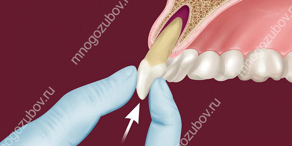 Витальная реплантация зуба