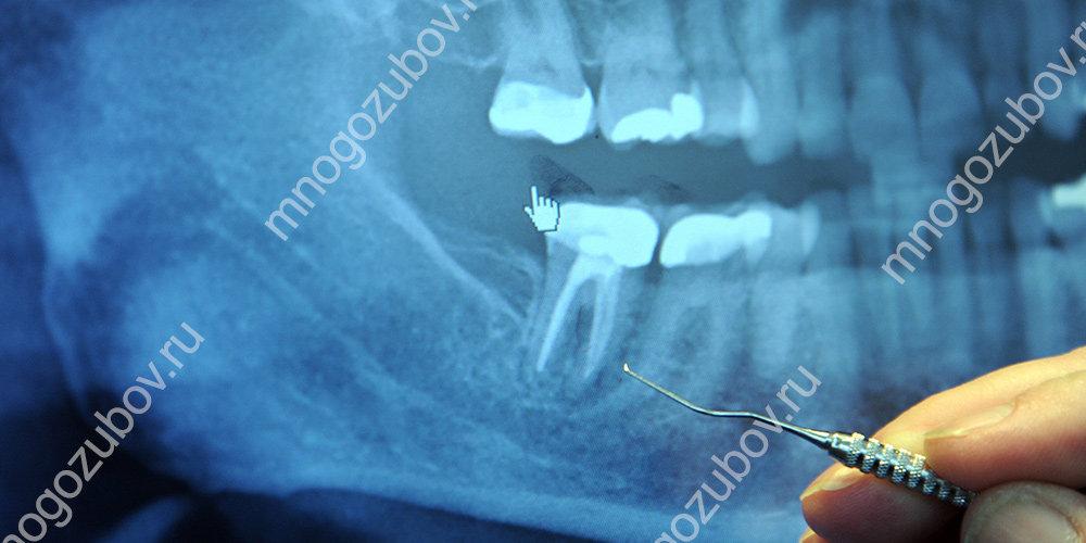 Рентген снимок зуба с бифуркацией