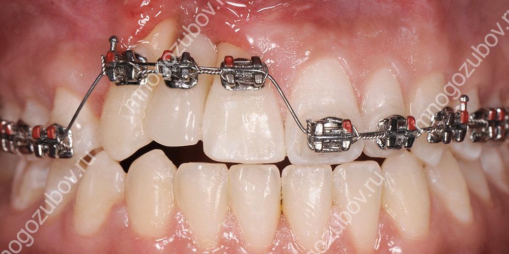 ортодонтическая экструзия зубов