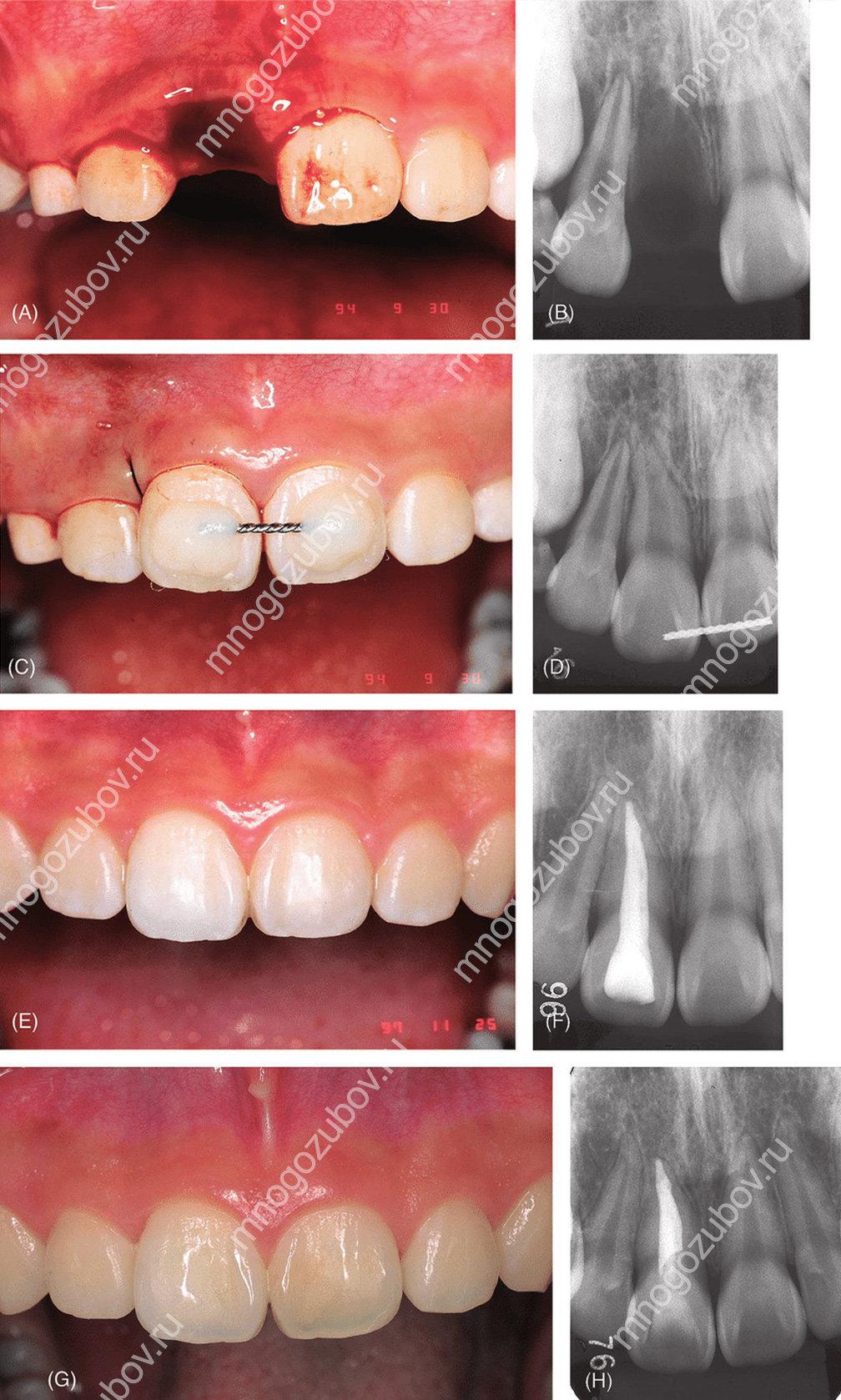 Этапы проведения реплантации зуба