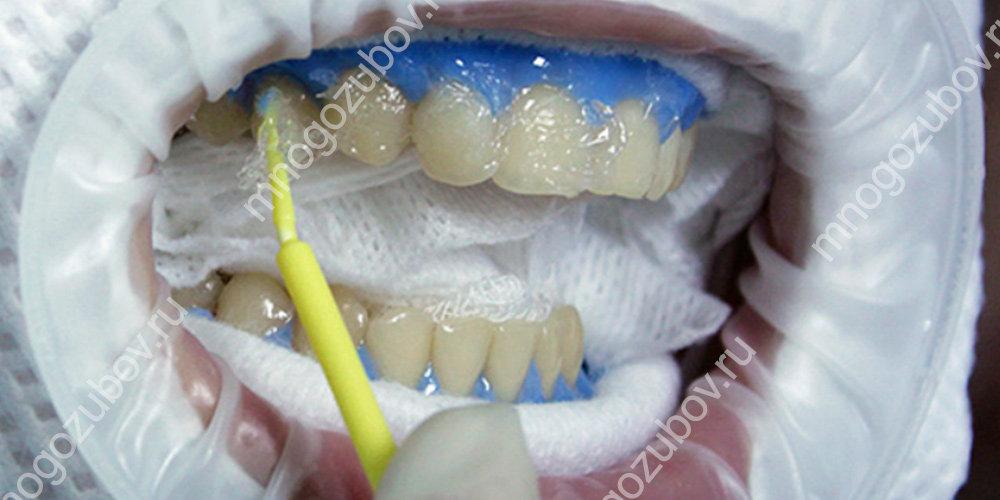 Отбеливание зубов химическихм способом