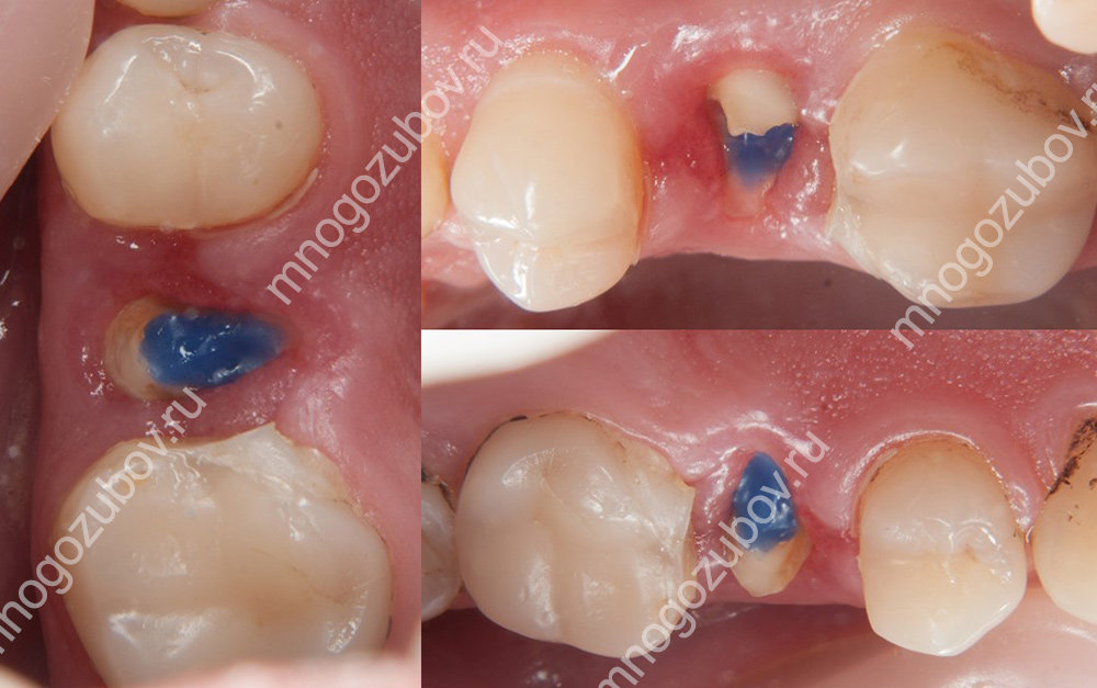 Хирургический метод экструзии зуба