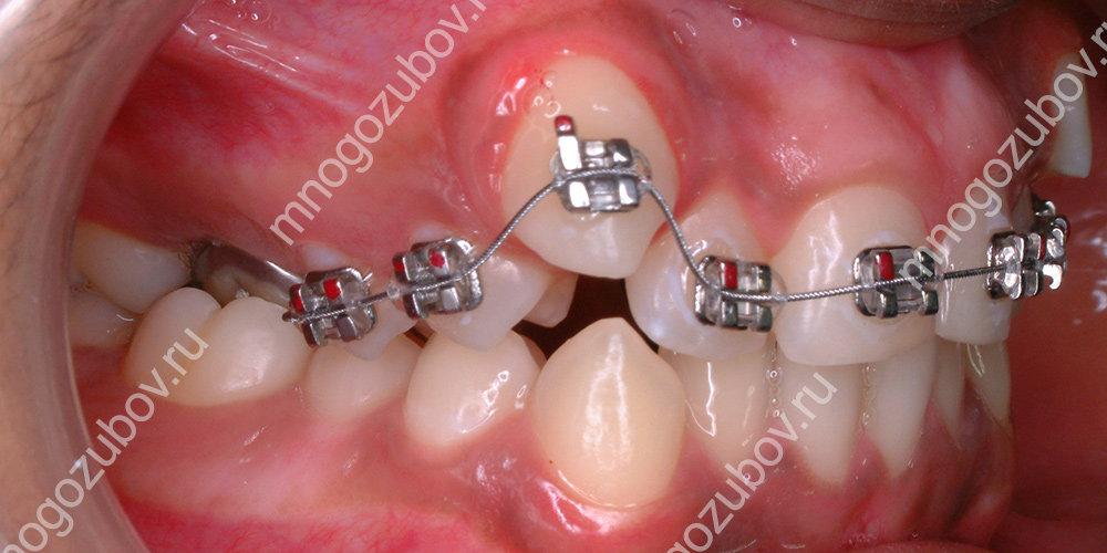 Выравнивание ретинированного зуба