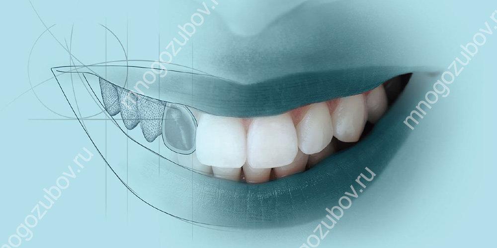 Армирование зубов что это