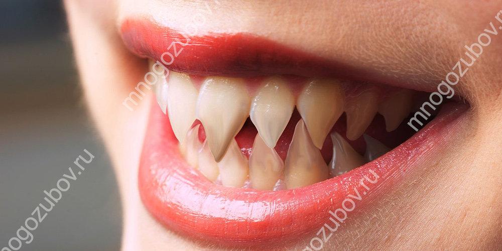 Шиповидные зубы - как решить проблему